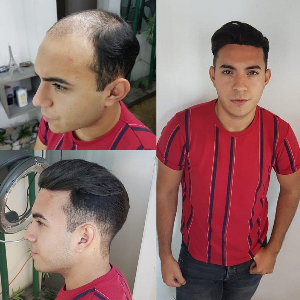 capital hair resultados